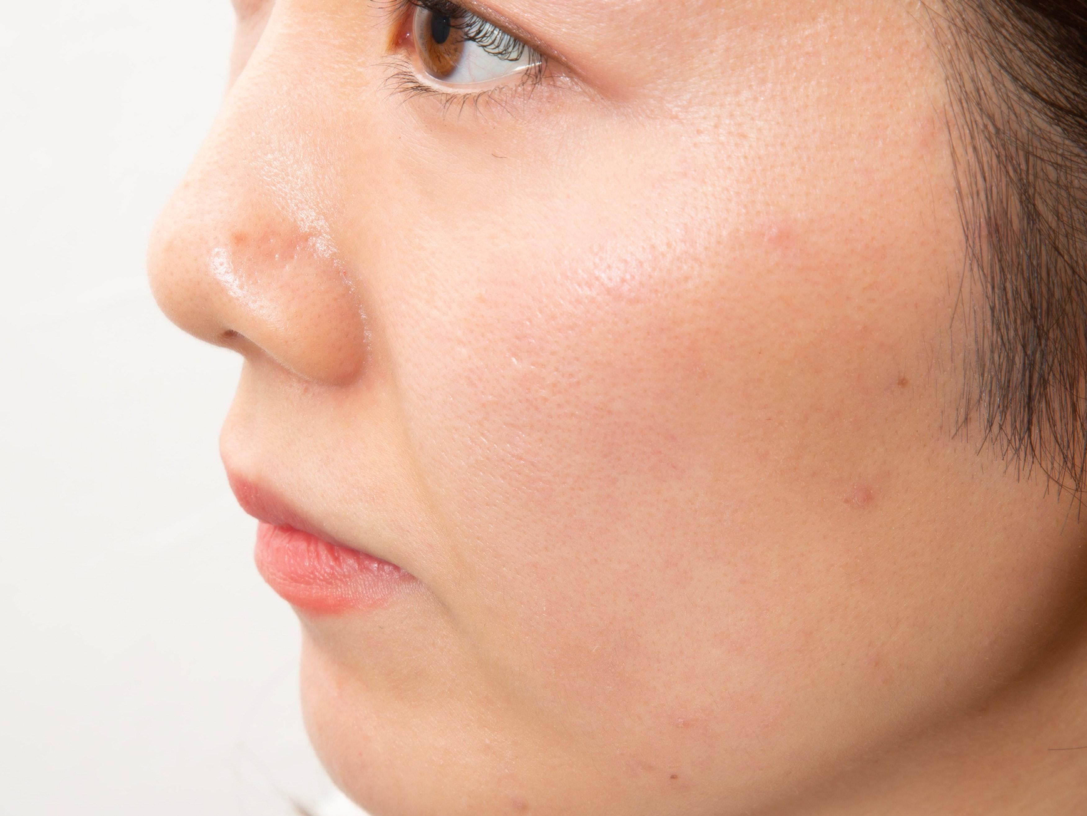 Nếu bạn có cảm giác khô, bạn có thể có được làn da bóng hoặc nửa mờ cho làn da ẩm.